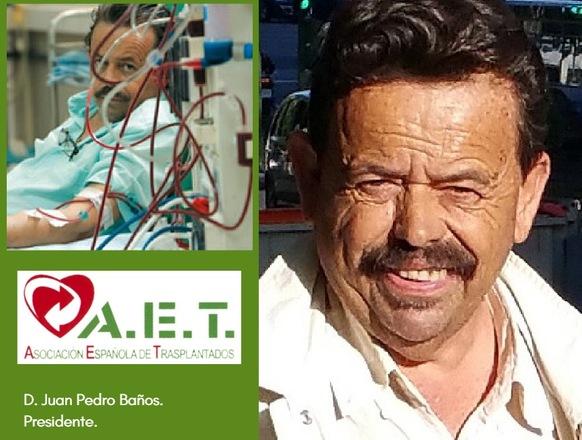 Kurere   Juan Pedro Baños, Trasplantes, Murcia, España.